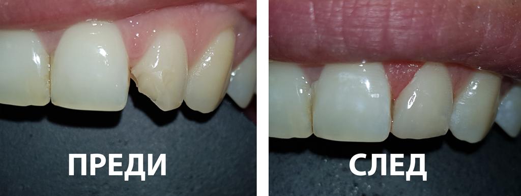 ПРЕДИ и СЛЕД боднинг възстановяване на фрактура на зъб 22- Д-р Маринов