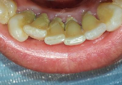 След премахване на зъбен камък