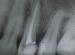 Рентгенография на пулпит