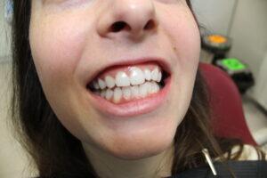 избелени зъби
