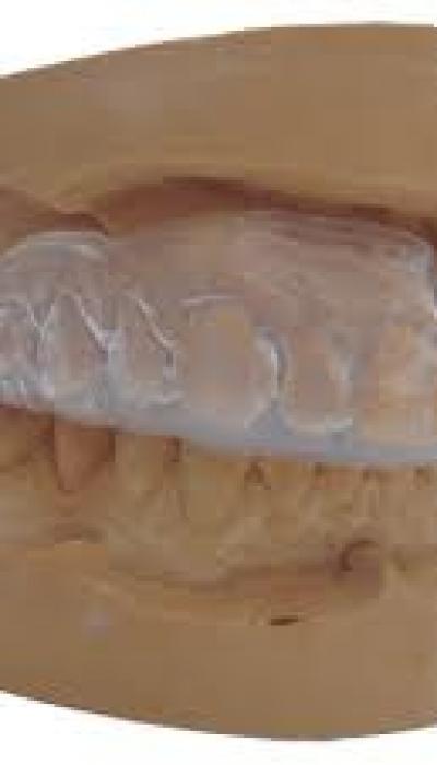 Боксьорски шини пазят зъбите от травми
