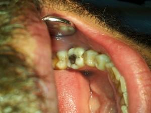 Лечение на кариес с високоестетичен фотокомпозит