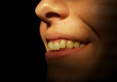Зъбни украшения