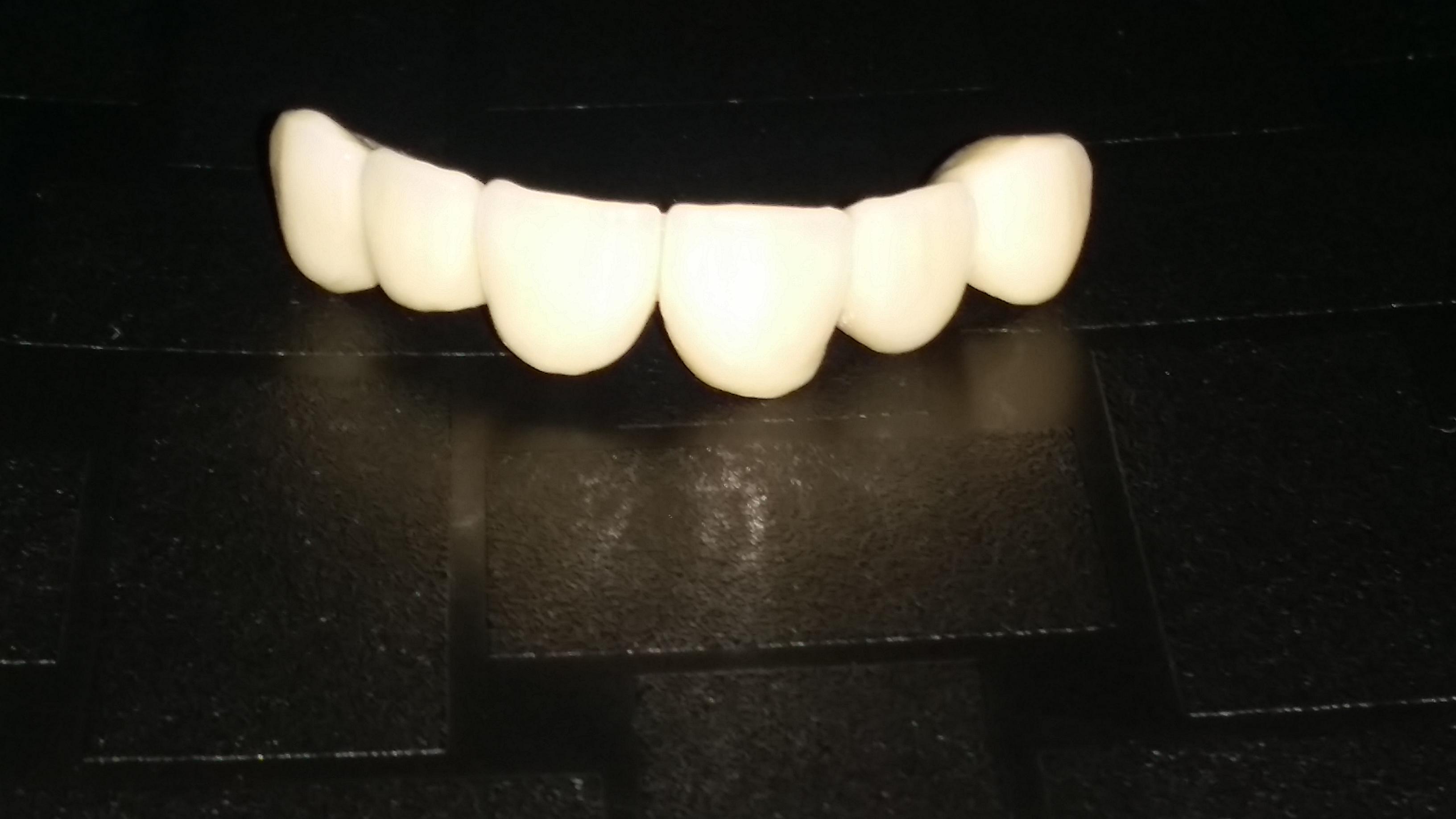 Металокерамични зъбни корони