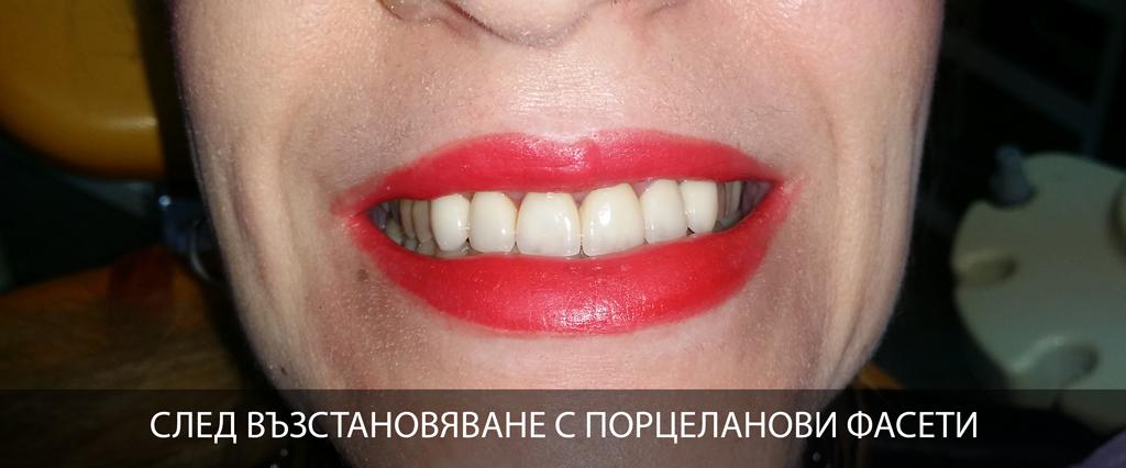 възстановяване на усмивката с използване на порцеланови фасети