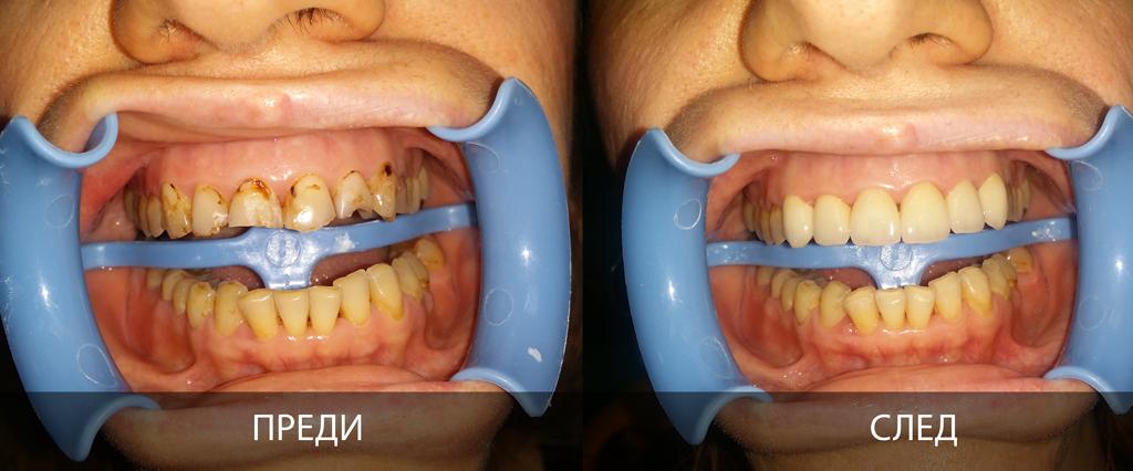 клиничен случай на порцеланови фасети преди и след лечението