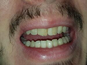 реставрация на предни зъби