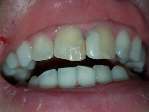 зъбите след избелване